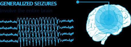 Generalized seizures